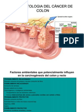cancer de colon fisiopatologia)