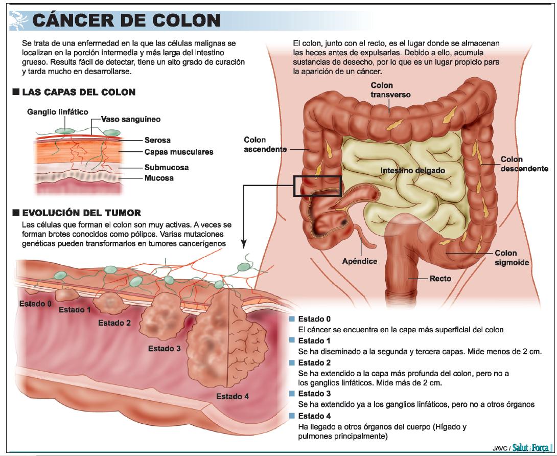 cancer de colon que lo provoca