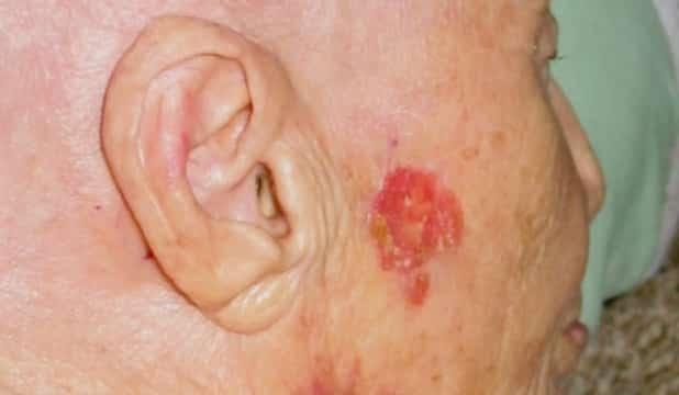 cancer de piele transmisibil produse derivate din paraziți din organism