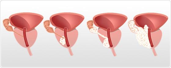 cancer de prostata grau 7