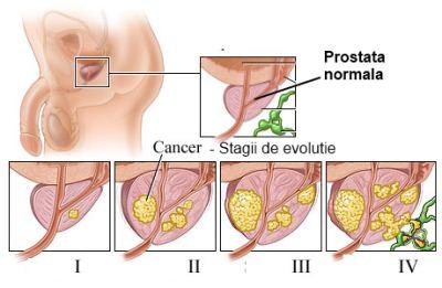 cancer de prostata stadiul 3)