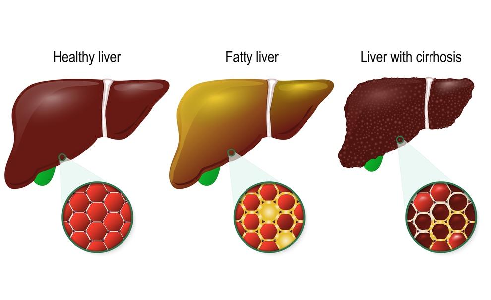 Ciroza hepatica: cauze, simptome, tratament Regina Maria