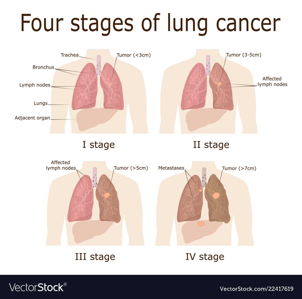 cancer limfatic diagnostic perche il papilloma virus non va via