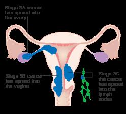Endometrial cancer causes.
