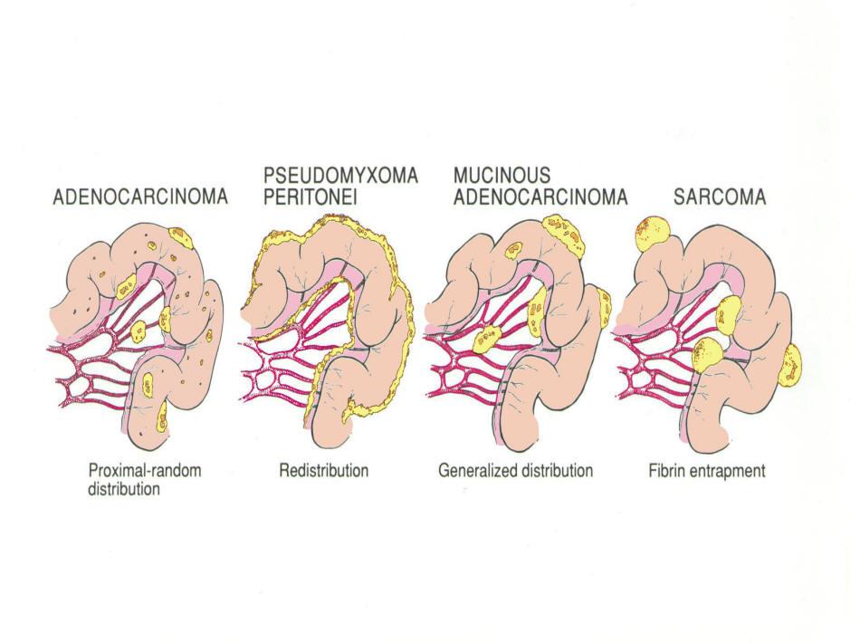 cancer peritoneal tratamiento