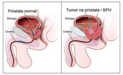cancer prostata recidiva