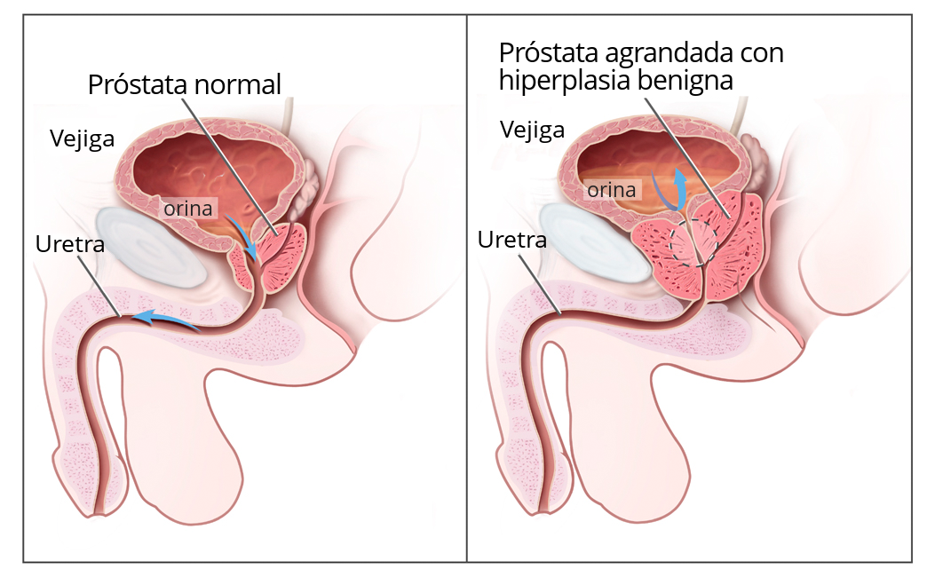 cancer prostata y vejiga