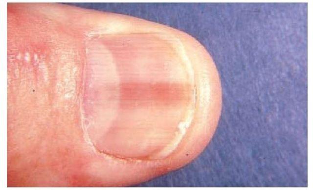 cancer sub unghie