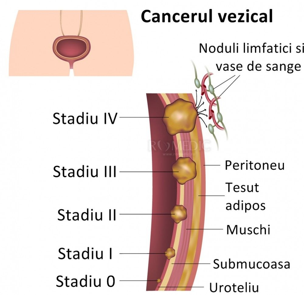 cancer tract urinar