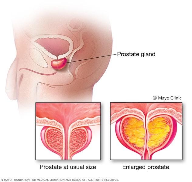 cancer uretra simptome