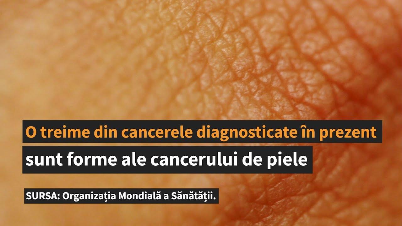 papilloma virus seno scortisoara ca leac pentru viermi