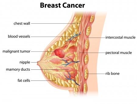 sintomi hpv dopo quanto tempo cancer de colon quais os sintomas