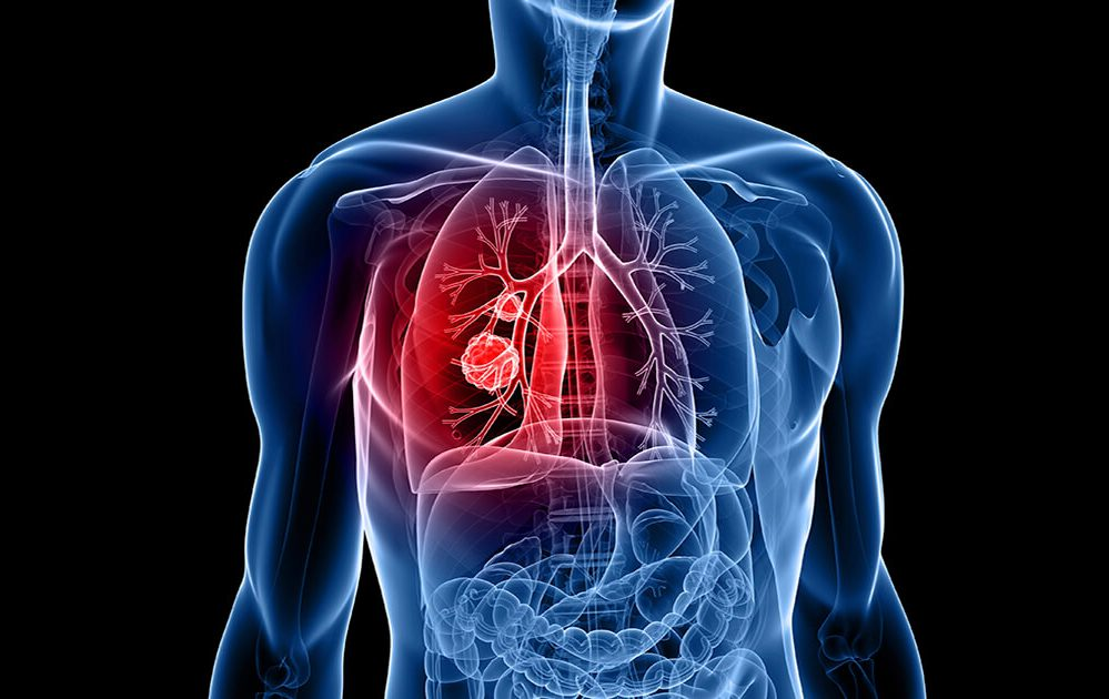 can hpv cause cancer more than once neuroendocrine cancer spread to liver