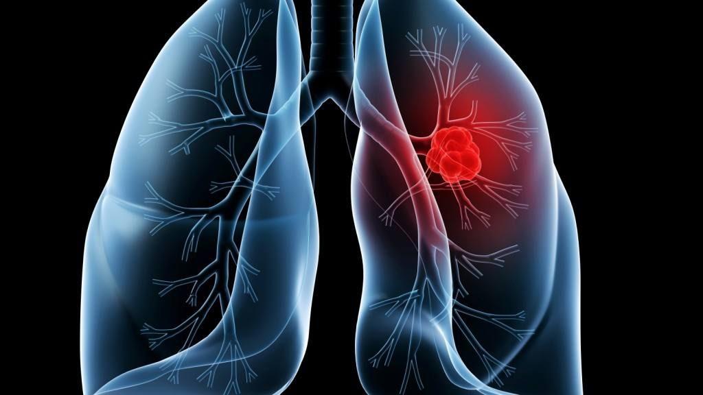 cauze cancer la plamani manifestări de vierme rotunde