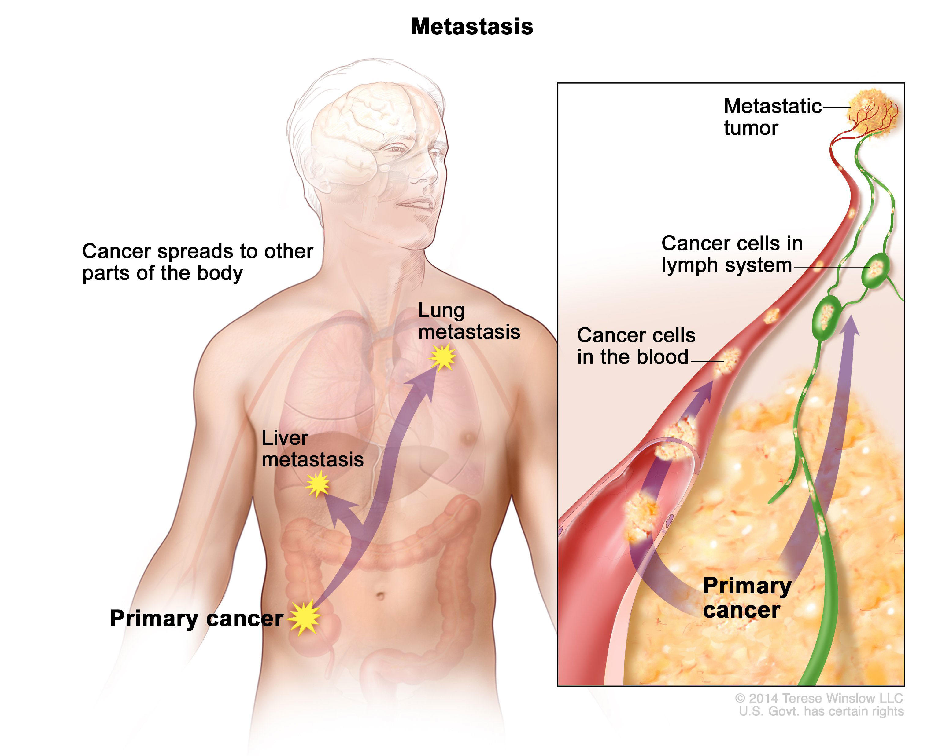 metastatic cancer of the colon symptoms)