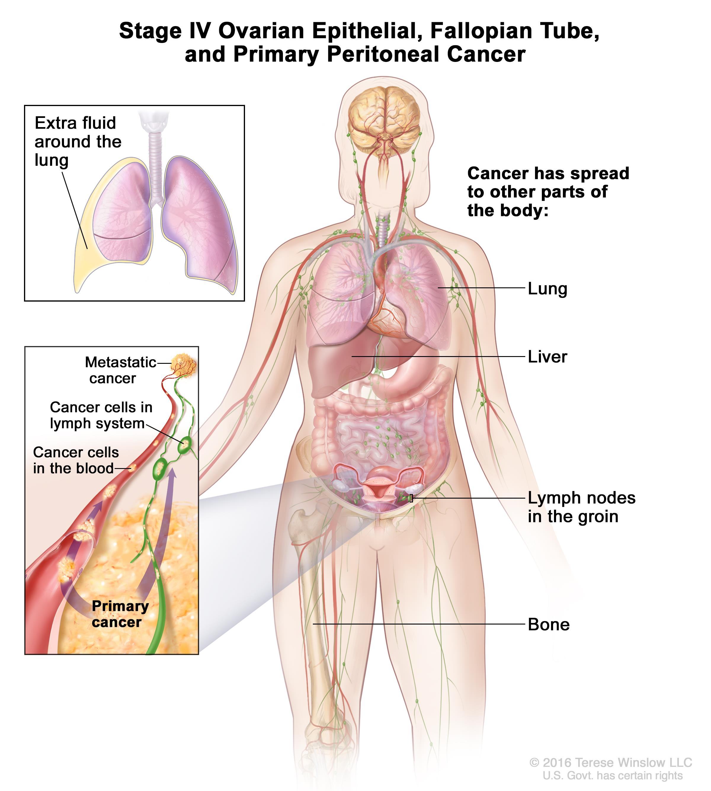peritoneal cancer back pain