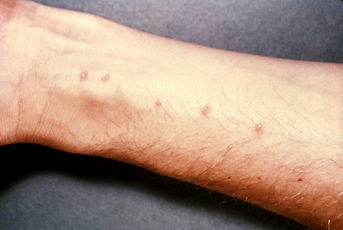schistosomiasis symptomen)