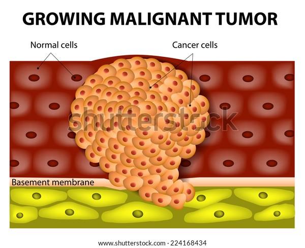 cancer benign simptome)
