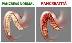 eac rapid și eficient pentru viermi endometrial cancer estrogen