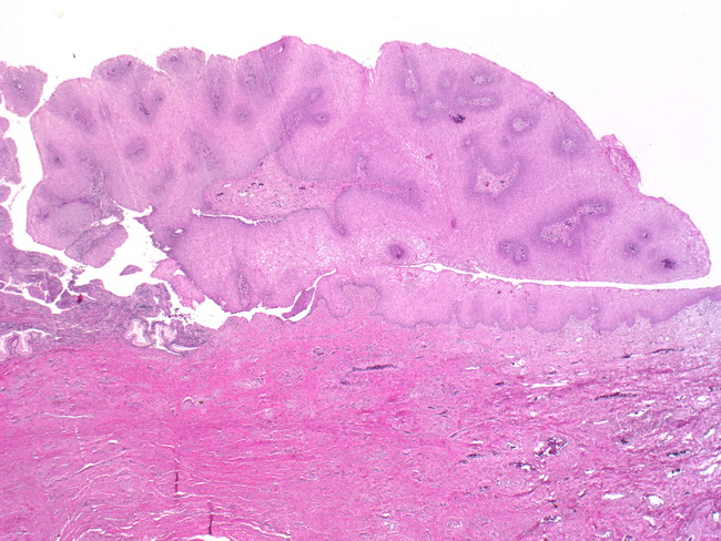 condyloma acuminata histopathology description)