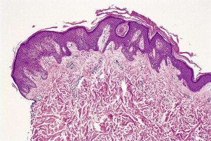 confluent and reticulated papillomatosis histopathology