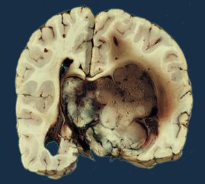 Benign choroid plexus papilloma. Carcinomul plexului coroid