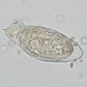 schistosomiasis in urine