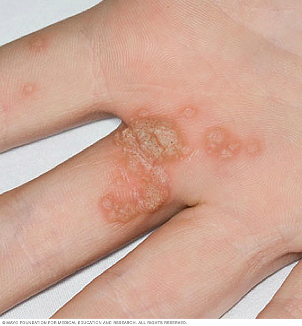hpv cracked skin)