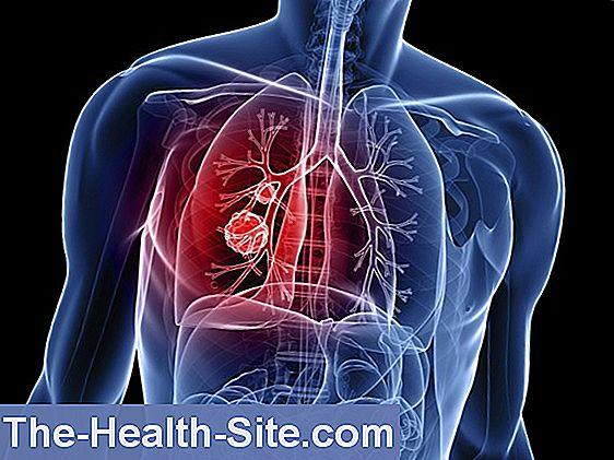 Parazitozele pulmonare pe radiografia toracică