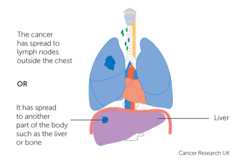 sarcoma cancer spread to lungs)