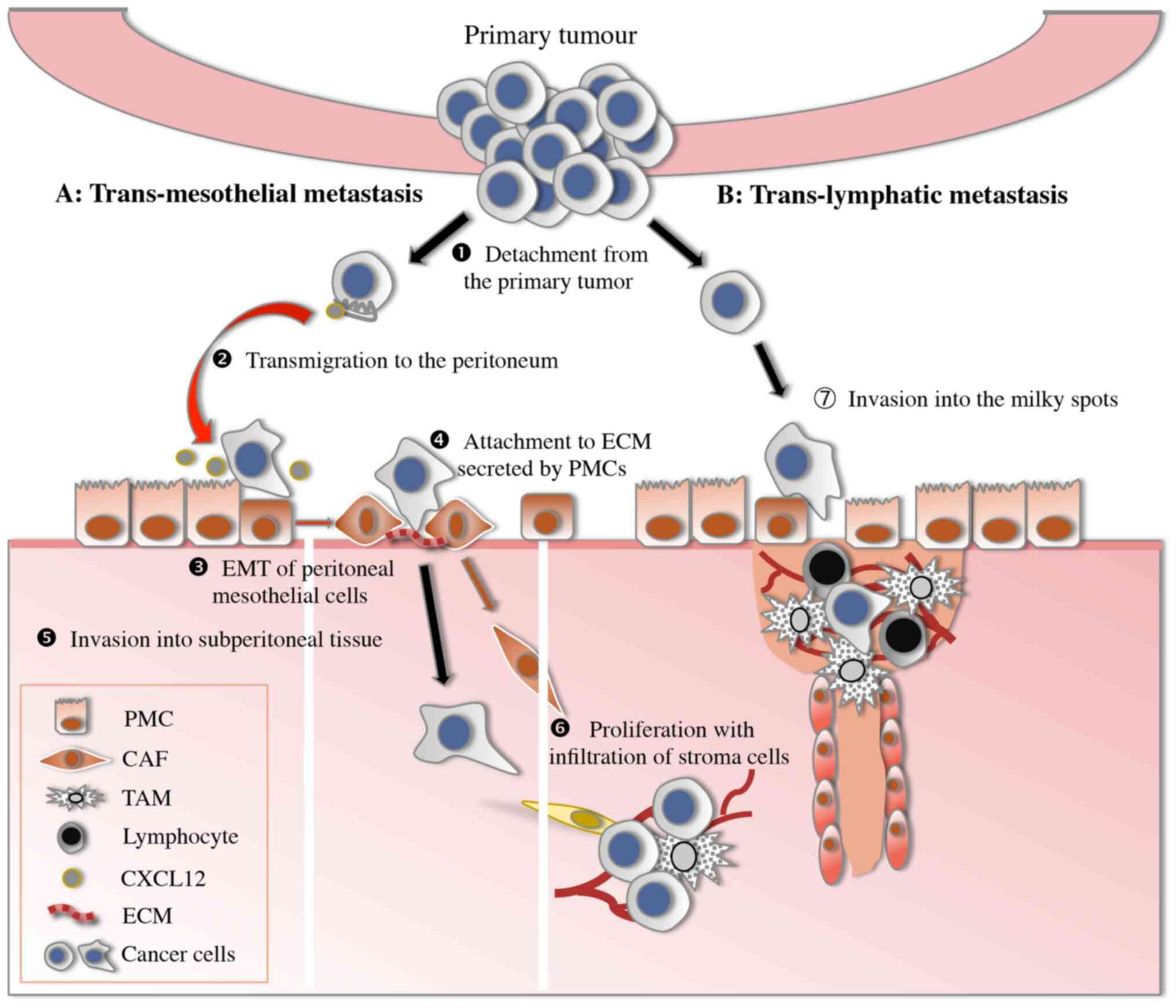 gastric cancer vascular invasion parazitul uman nu este