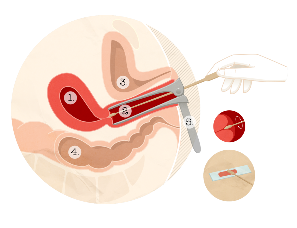 hpv grossesse symptomes