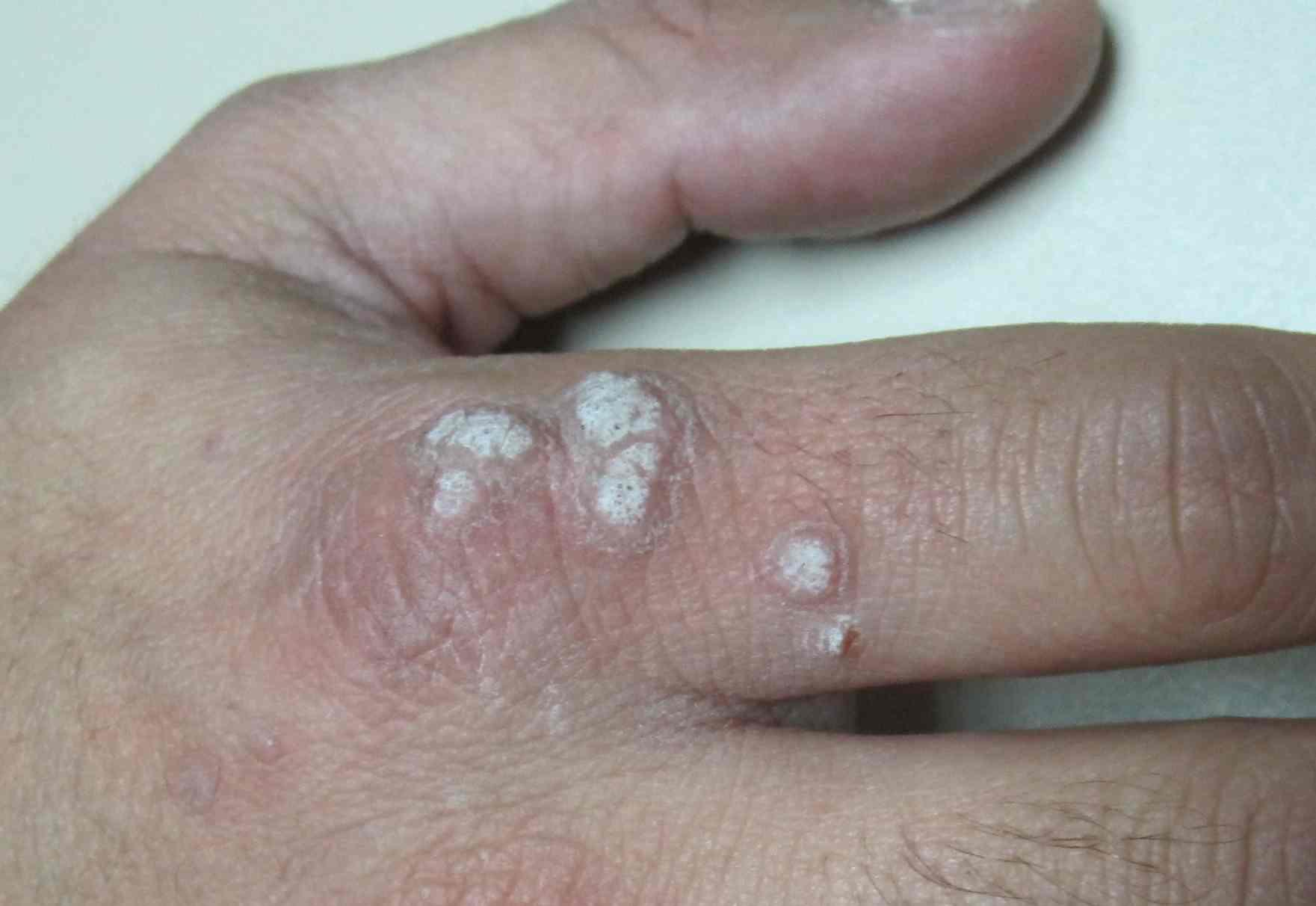 virus del papiloma en manos
