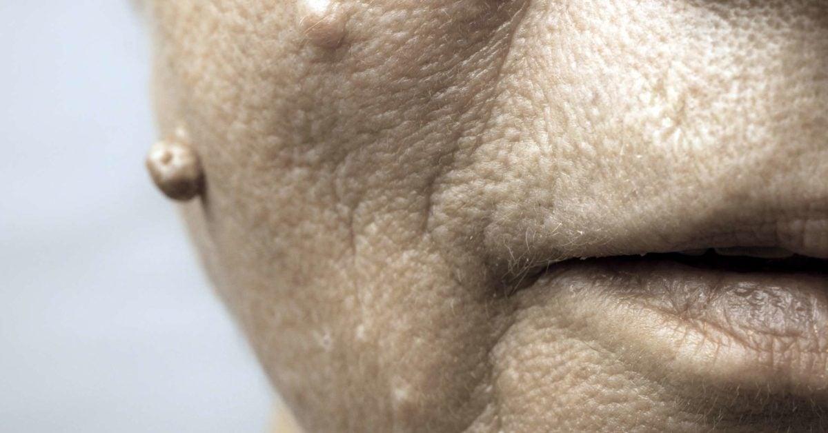 Lesion du papillomavirus