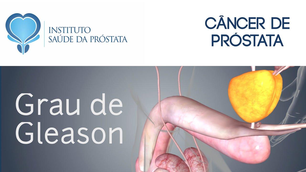noutati cancer de prostata)