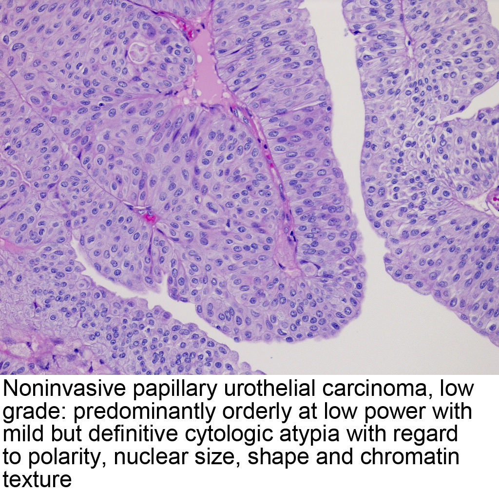 papillary urothelial neoplasm pathology outlines)