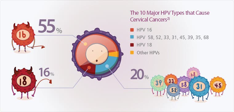 high risk hpv leads to cancer cancer in gat metastaza