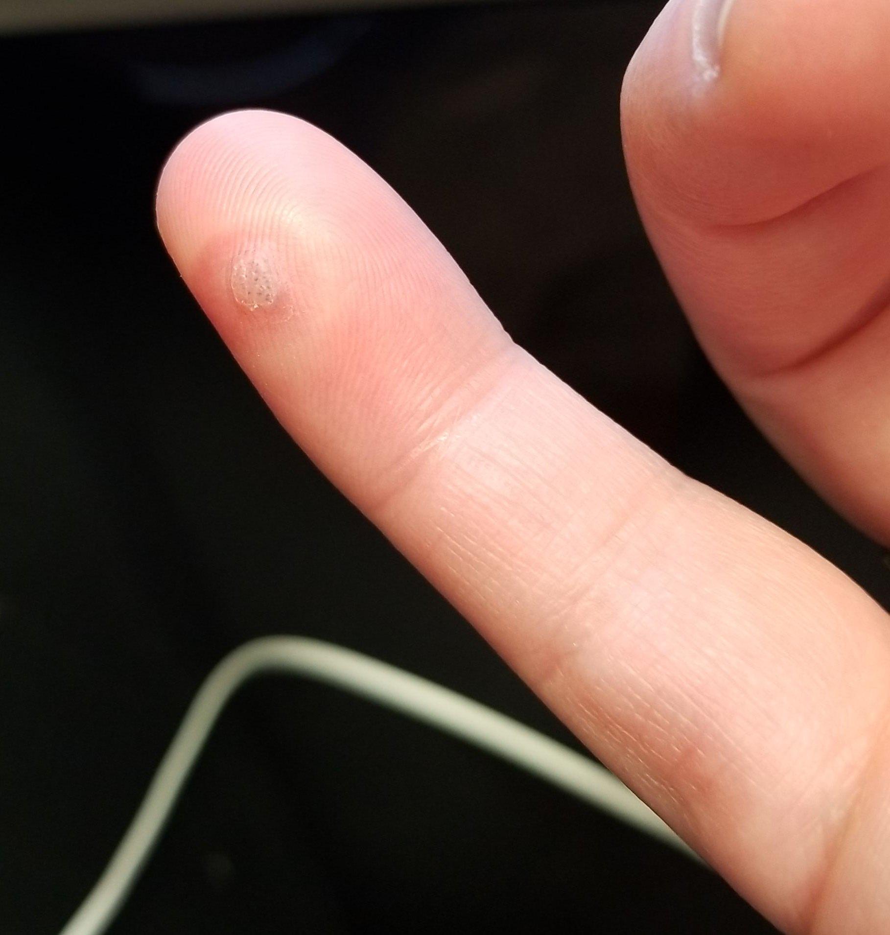 warts on hands liquid nitrogen