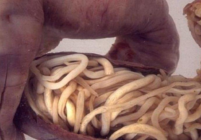 Paraziti u crijevima lijek, Încărcat de