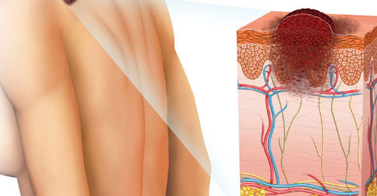 cancer de piele denumire)