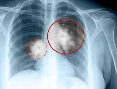 cancer metastaza simptome