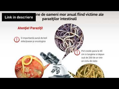 Viermi intestinale clip art