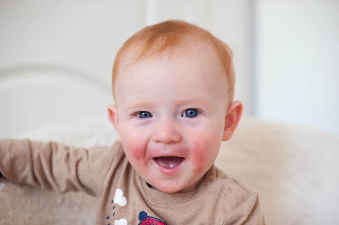 dermatite bebe)
