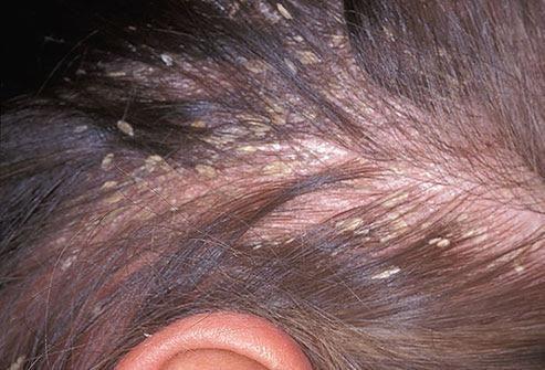 dermatite capilar)