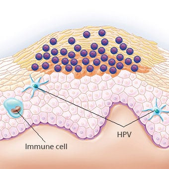 Hpv virus and warts on hands. Human Papilloma Virus – Verucilor genitale – Verucilor genitale