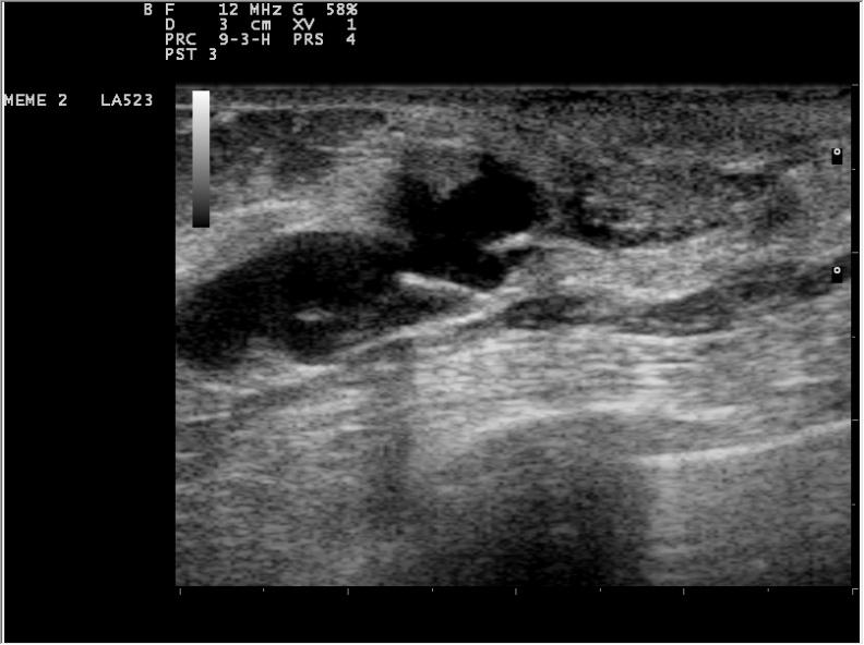 Duct papilloma usg, Hpv cervical cancer medscape