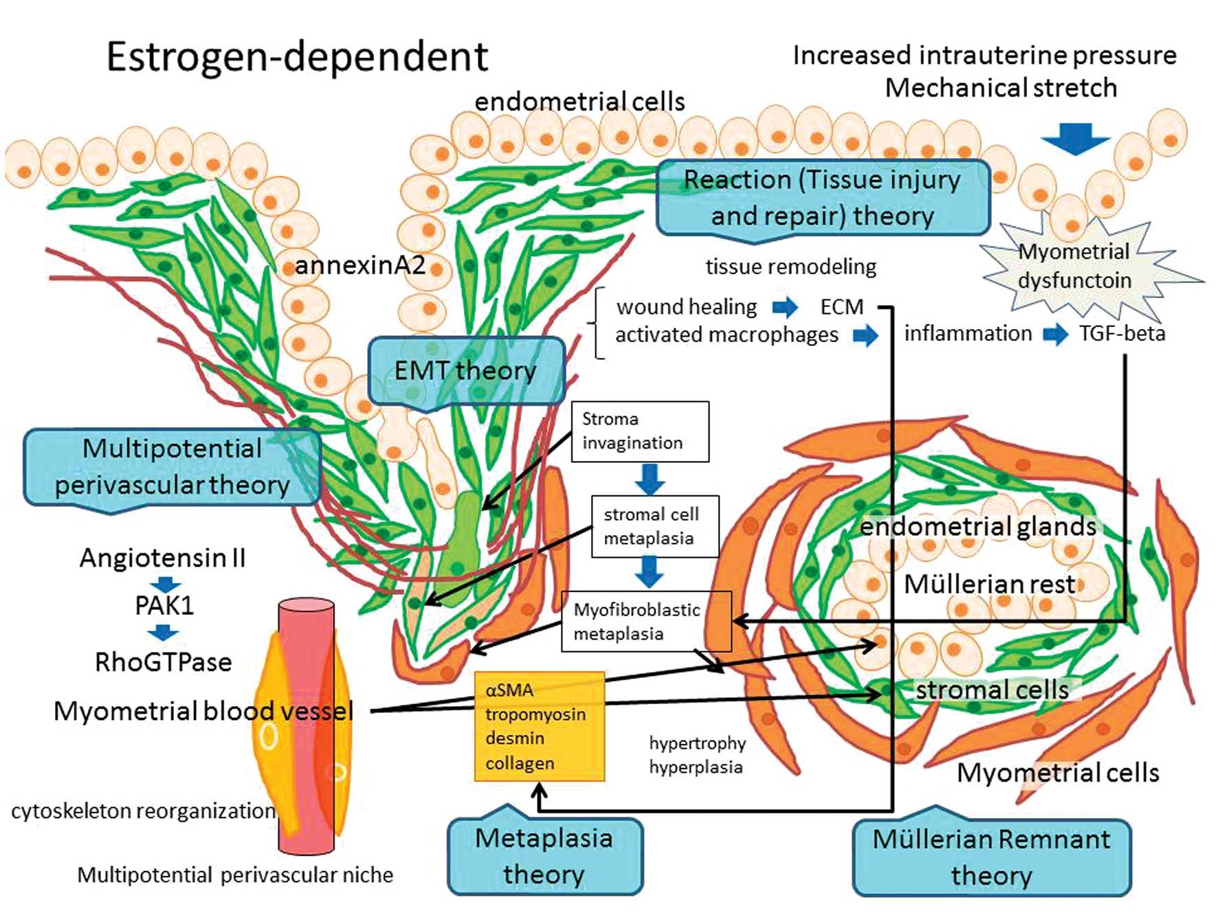 Endometrial cancer or adenomyosis - Extinderea sarcinii venelor uterine