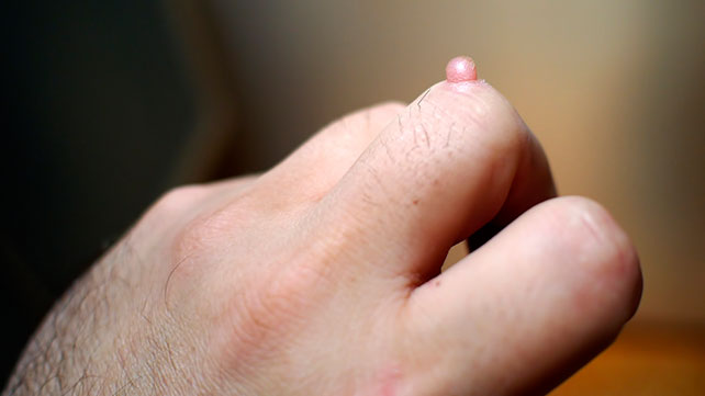 warts on hands prevention)