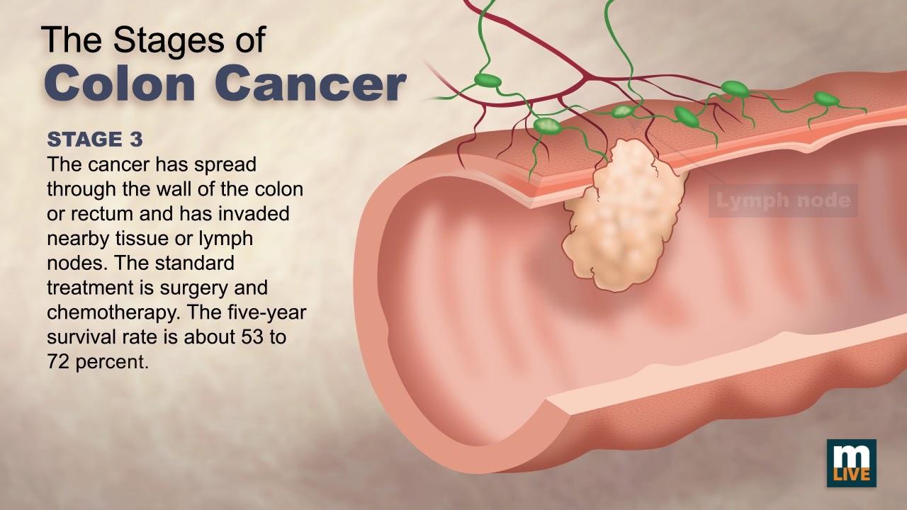 ține departe fergusele hpv and gastric cancer