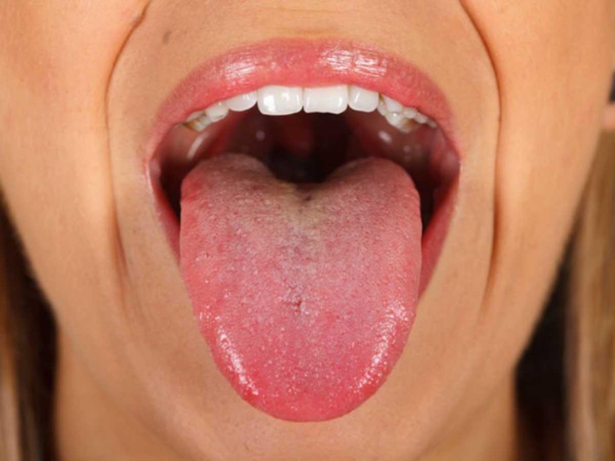 virus papiloma en boca